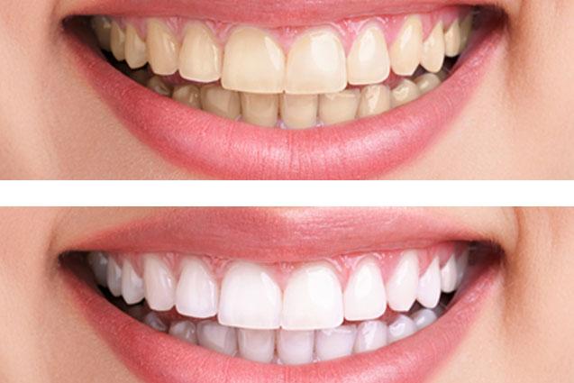 Blanqueamiento dental Madrid centro
