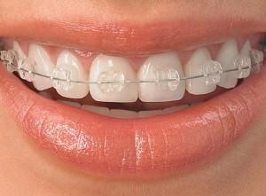Ortodoncias Madrid blanca